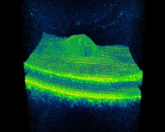 Tomografia 3D macular