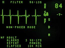 electrocardiograma BLOG
