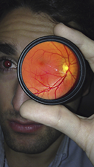 foto-retina